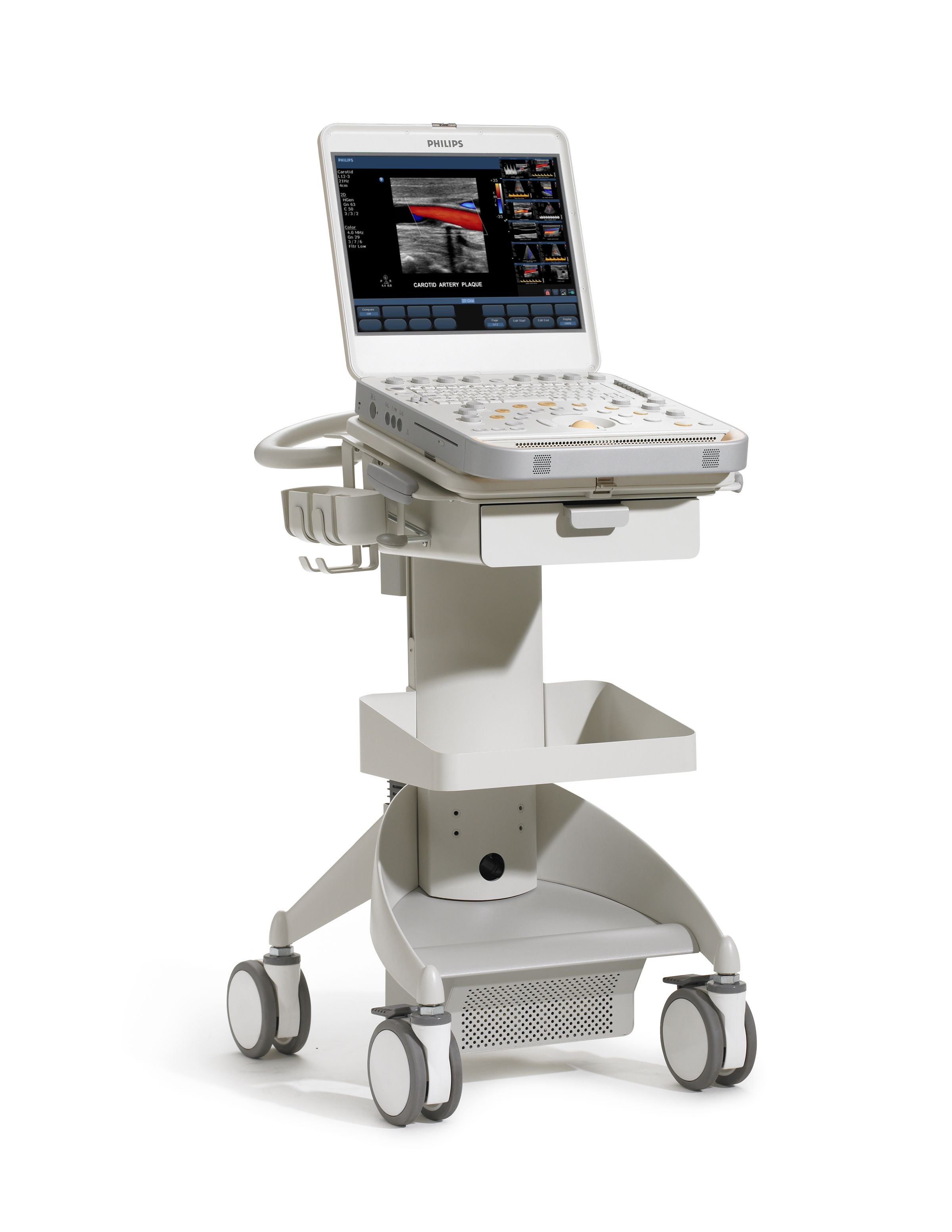 Philips Cx50 Ultraschallsystem B 246 Hm Elektromedizin