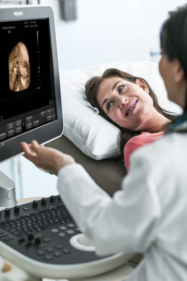 Philips ClearVue 650 Ultraschallsystem mit großem Bildschirm zum präsentieren des Ultraschallbildes. (Artikelnummer: 795220)